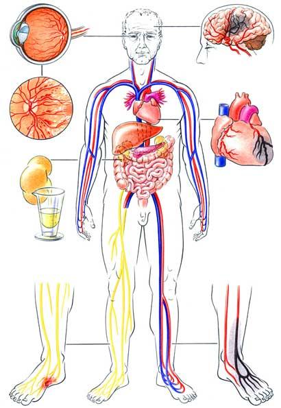 Akute Komplikationen bei Diabetes